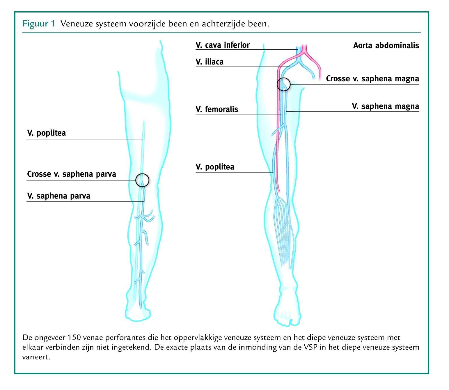 patologie varicoză